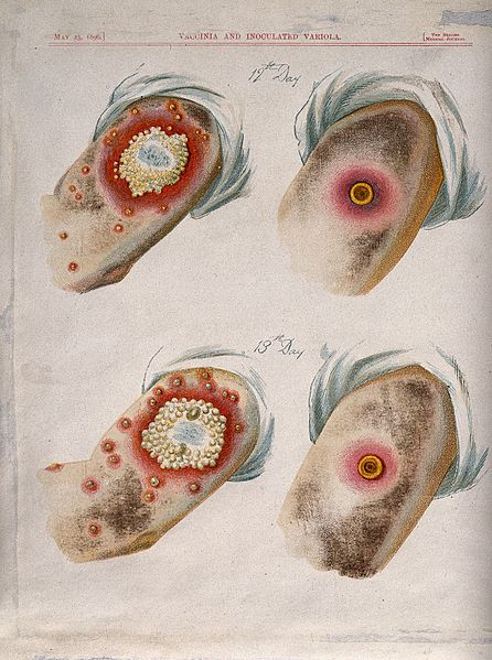 A_comparison_between_smallpox_and_cowpox_pustules_on_the_12t_Wellcome_V0016674